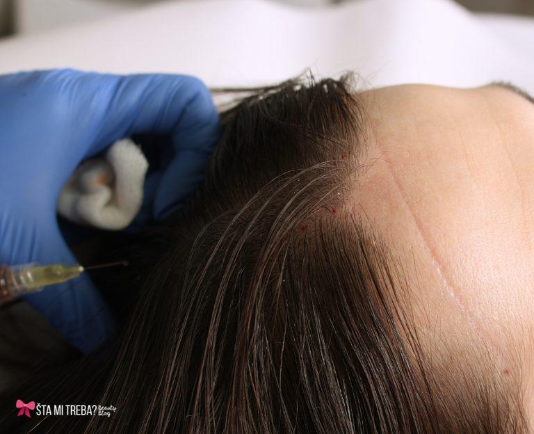 Tablete za rast kose solgar